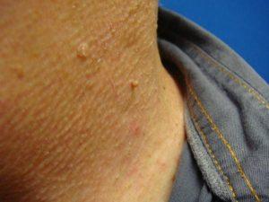 Появление папиллом на коже