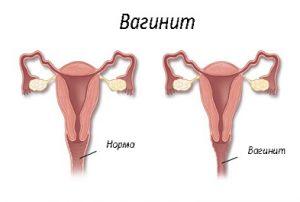 Признаки вагинита