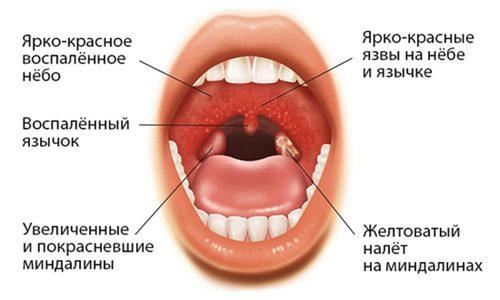 Признаки заболевания