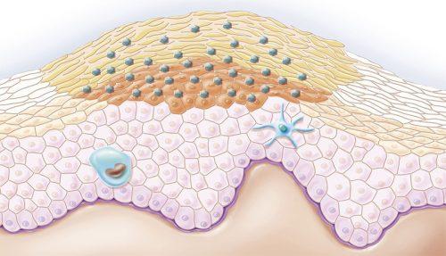 Схема опухоли