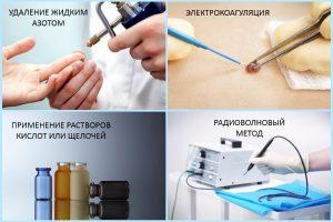 Способы лечения