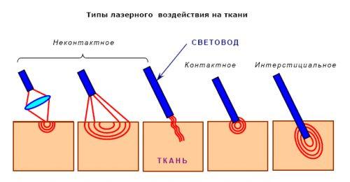 Типы лазерного воздействия на ткани