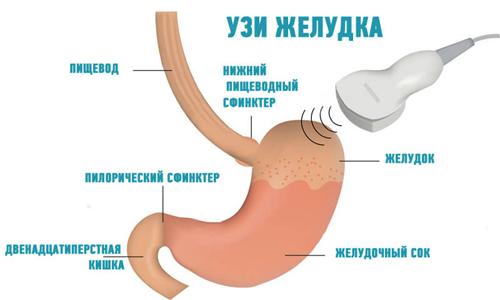УЗИ желудка