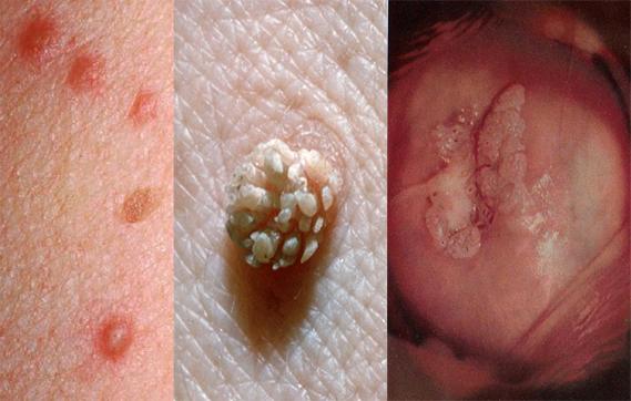ВПЧ 51 типа: симптомы, способы заражения, диагностика и лечение