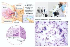 Взятие мазка на ВПЧ и состояние клеток