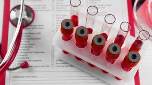 Анализ крови на гепатит С