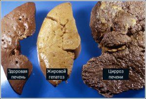 Гепатоз и цирроз печени