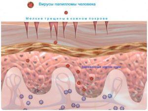 Инфицирование вирусом