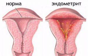 Эндометрит у женщин