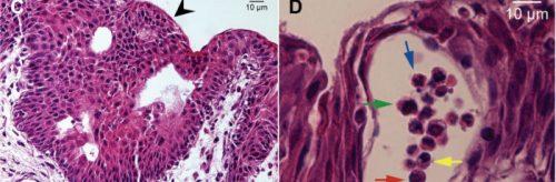 Клетки уреаплазмы