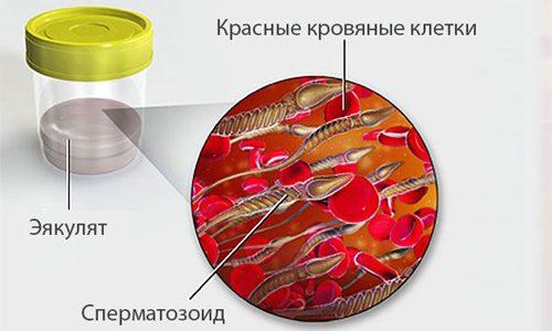 Кровь в семенной жидкости