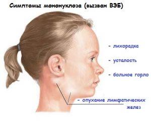 Мононуклеозоподобный синдром