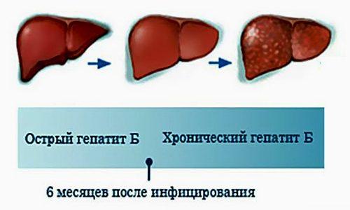 Острый и хронический гепатит В