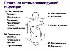 Патогенез инфекции