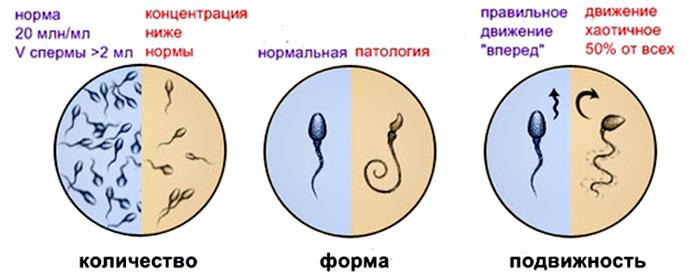 Обнаружены сперматозоиды в незначительном количестве