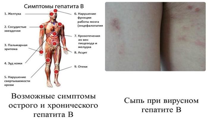 Гепатит симптомы женщин первые признаки лечение