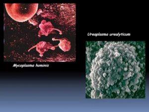 Уреаплазма и микоплазма