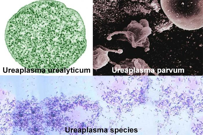 бактерии уреаплазмы