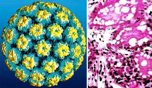 Вирус папилломы у мужчины