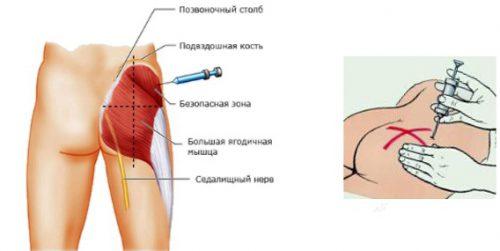 Внутримышечный укол