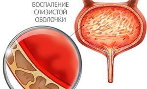 Воспаление при цистите