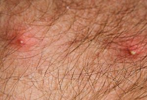 Воспалившиеся укусы вшей