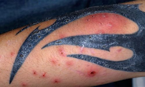 Заражение гепатитом в тату-салоне