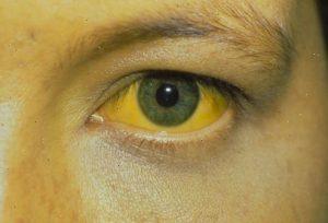 Желтое окрашивание кожи и склер