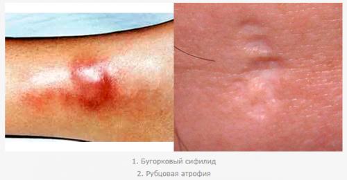 Бугорковый сифилид и рубцовая атрофия