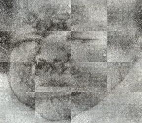 Диффузная инфильтрация лица