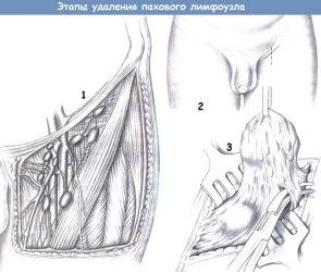 Этапы удаления пахового лимфоузла