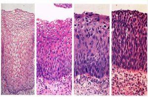Формирование раковых клеток