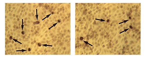 Клетки в мазке при хламидиозе