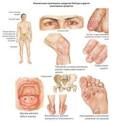 Клинические проявления синдрома Рейтера
