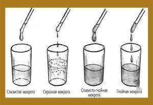 Лабораторные исследования мокроты