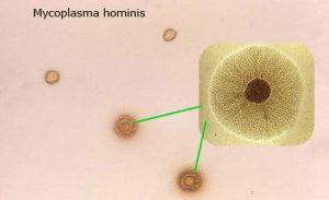 Микоплазма под микроскопом