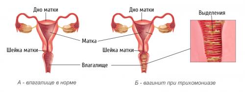 Норма и вагинит