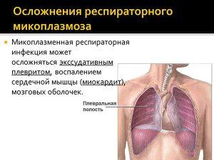 Осложнения респираторного микоплазмоза