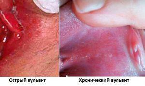 Острый и хронический вульвит