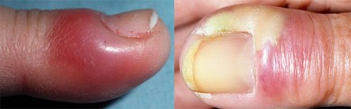 Панариций пальцев