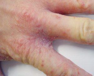 Появление сыпи между пальцами