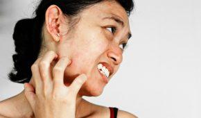 Проблема чесотки на лице