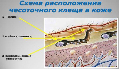 Расположение клеща в коже