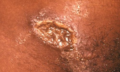 Рубцевание шанкра