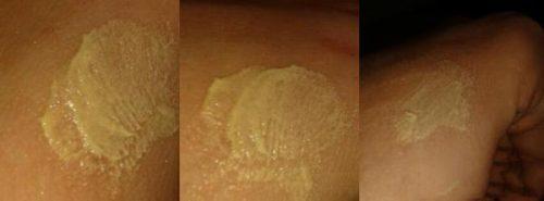 Серная мазь на коже