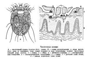 Схема поражения кожи
