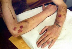 Сифилис на фоне ВИЧ