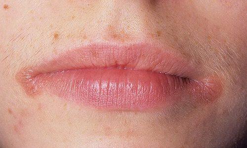 Сифилитические шанкры на губах