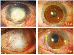 Сифилитическое поражение глаз