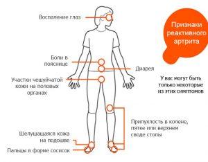 Симптомы реактивного артрита